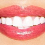 Atlanta GA Cosmetic Dentistry
