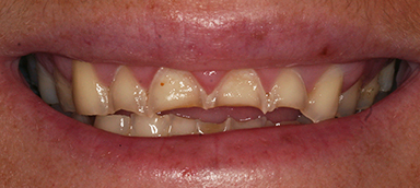 worn teeth before