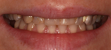 worn teeth before 2