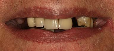 Missing teeth before 5