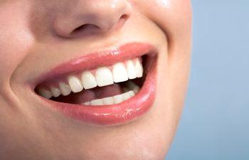 Cosmetic Dentist Dunwoody GA