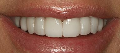 After dental procedure photo