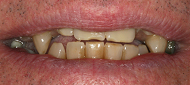 Worn Teeth before and after photo