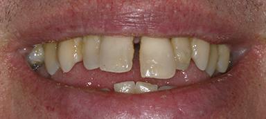 Before dental procedure photo