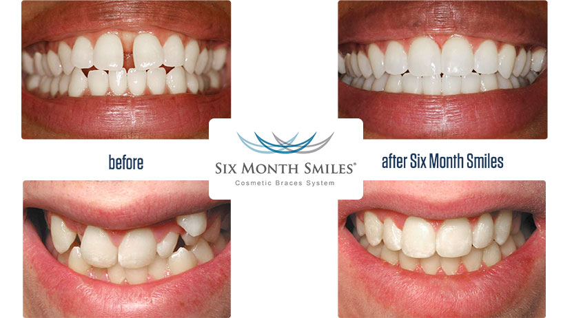 Six monnths smiles before and after photo