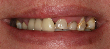 Old Crowns/Veneers before and after photo