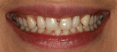 gaps in teeth before and after photo