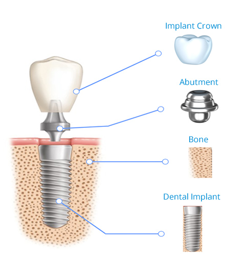 Implant structure