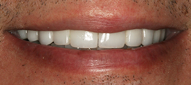 missing teeth before and after photo