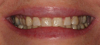 stained teeth before photo