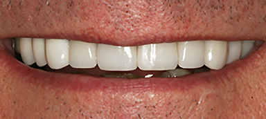 stained teeth after photo