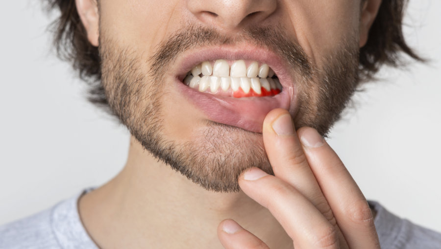man with tooth infection