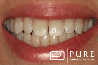 Smile before cosmetic procedures at Pure Dentalhealth buckhead