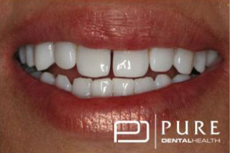 Smile after cosmetic procedures at Pure Dentalhealth buckhead