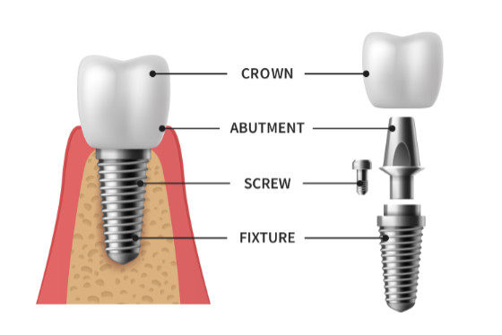 Implant structure. Implant is made of crown, abutment, scew and fixture